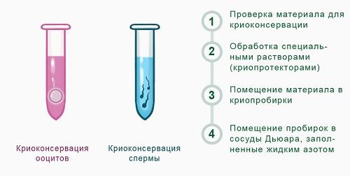 Крио заморозка спермы