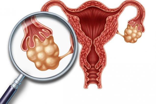 Гиперстимуляции яичников при ЭКО и беременность