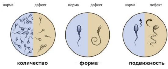 Лечения при кровиной сперммы у мужчин