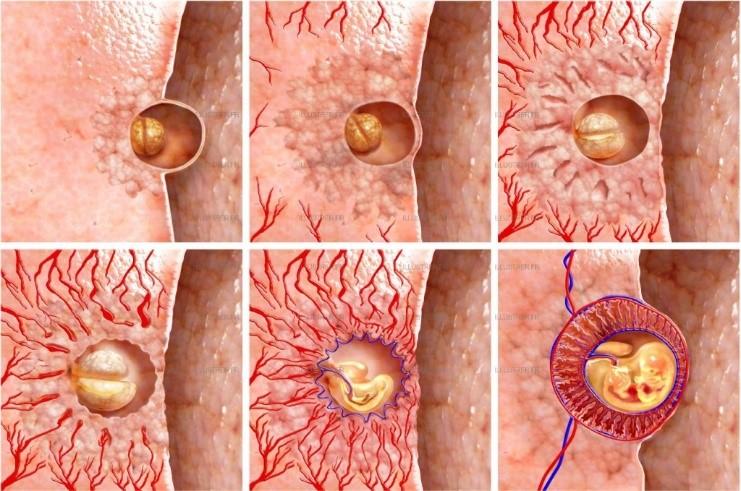 Имплантация эмбриона при ЭКО