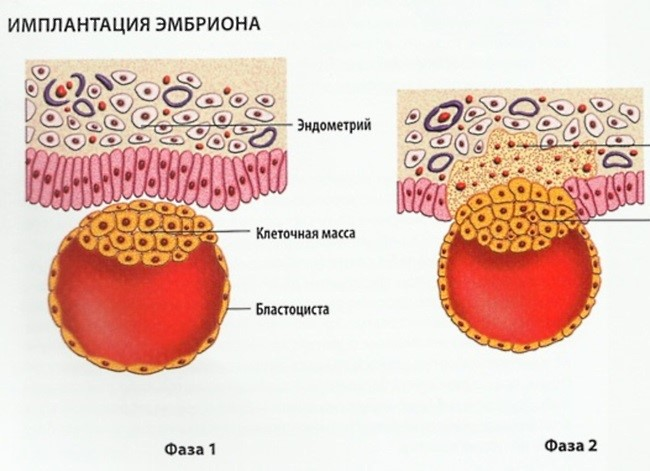 Кровянистые выделения после ЭКО
