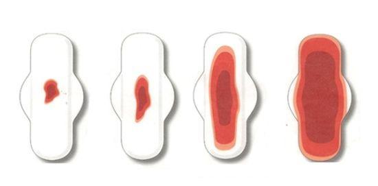 Выделения после ЭКО переноса эмбрионов