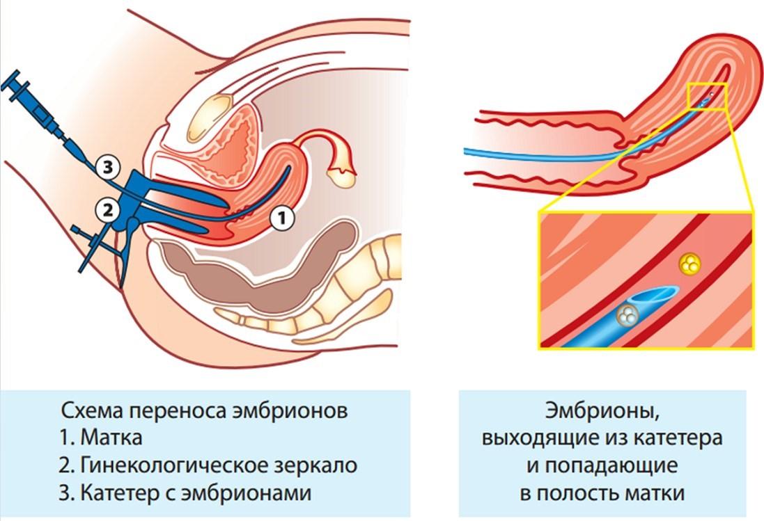 оргазм после подсадки эмбрионов
